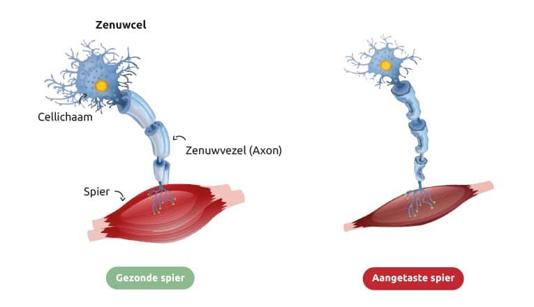 Illustratie van een gezonde spier en een spier met ALS