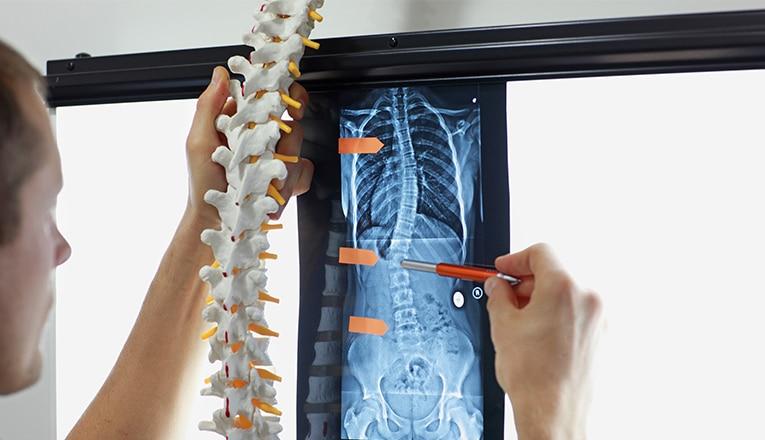 Een arts toont een ruggenwervel in een normale stand en een röntgenfoto van een ruggenwervel van een volwassene met symptomen van scoliose.