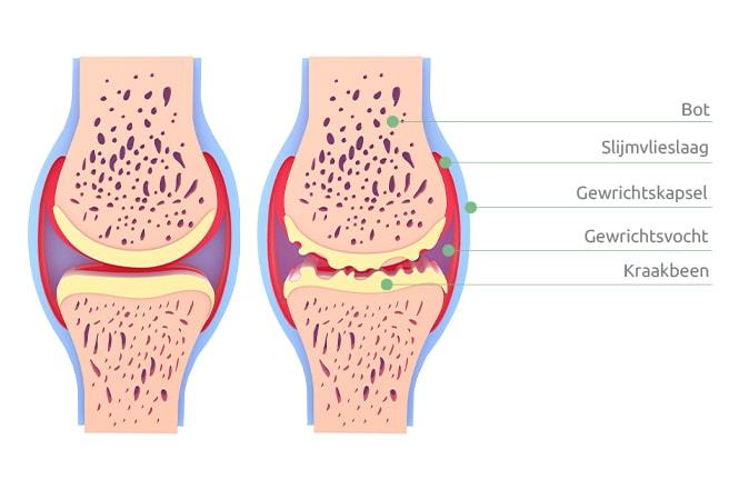 Een schematische afbeelding van een gezonde knie en van een knie met artrose.
