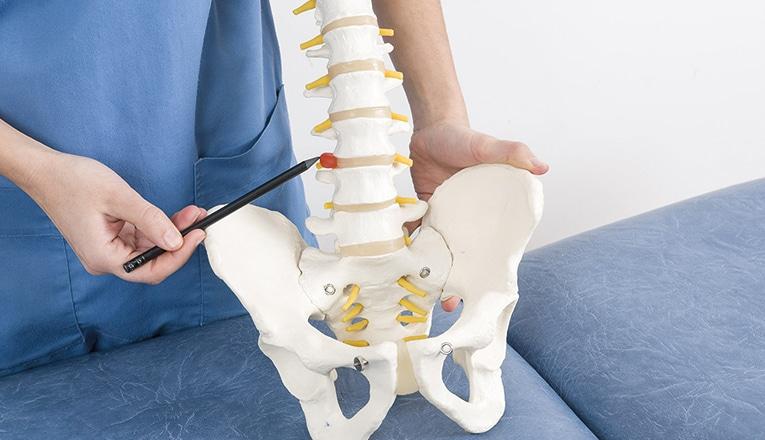 De dokter wijst een hernia in de rug aan op de ruggenwervel.