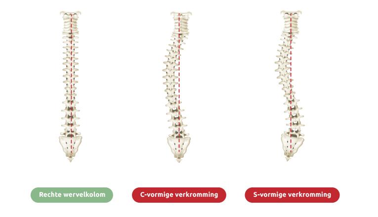 Een rugwervel in normale, rechte stand, en door scoliose aangetaste wervels in C-vorm en S-vorm laten duidelijk zien hoe scoliose verschillende lichamelijke symptomen kan veroorzaken.